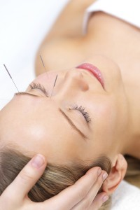 Acupuncture Therapy Scottsdale