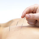 Acupuncture in Scottsdale